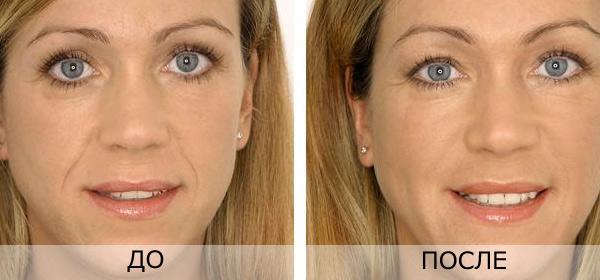 кислотой и после гиалуроновой фото до уколов лица