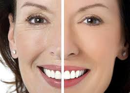 Фото до и после криотерапии 2