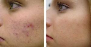 Фото до и после криотерапии