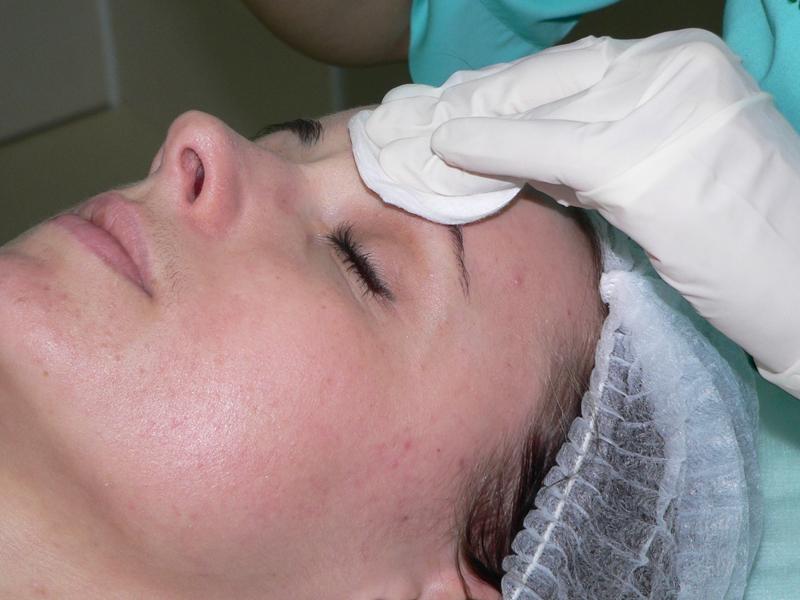 Лечение жировиков на лице механическое удаление