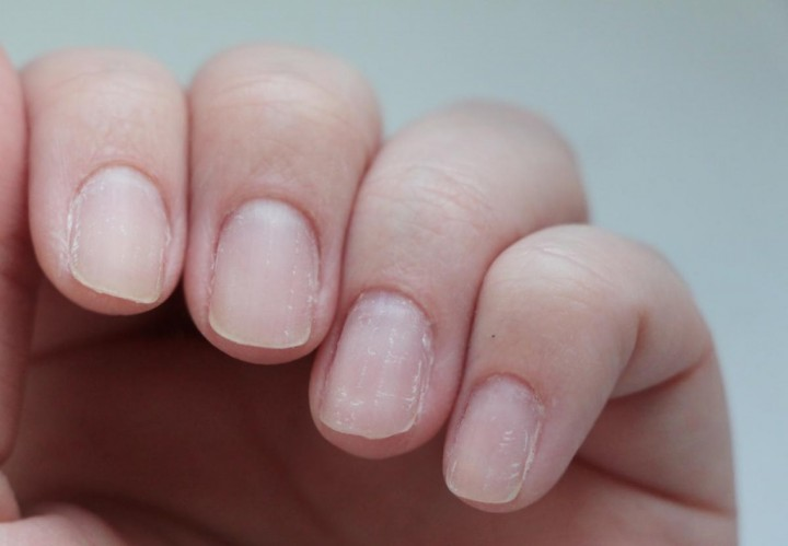 Наружное лечение ногтей