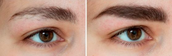 фото до и после Касторовое масло для бровей