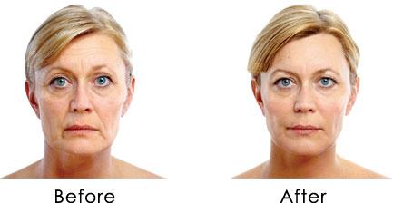Image result for до и после лицо