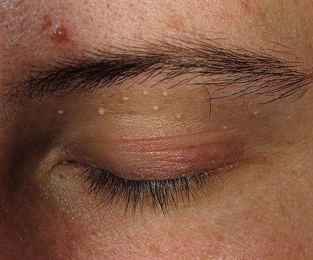 Жировик» может быть опасен — Газета Йошкар-Ола | 530x640