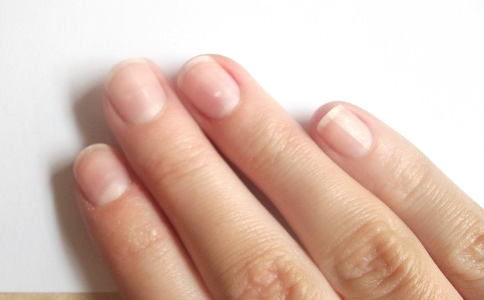 О чем говорят ногти
