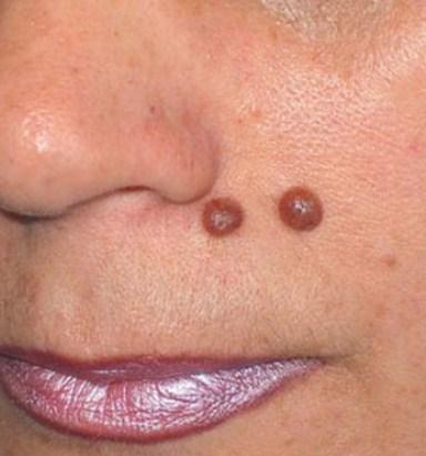 Как удалить папилломы и бородавки на лице и теле